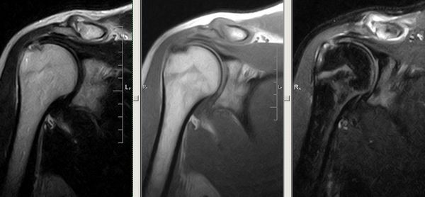 Изображение - Сколько стоит мрт коленного сустава в казани 1b19a4ee3f65f100b00e48ed974c8379
